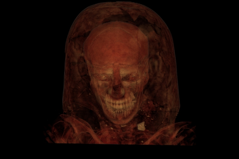 A CT scan of a mummy The Field Museum)