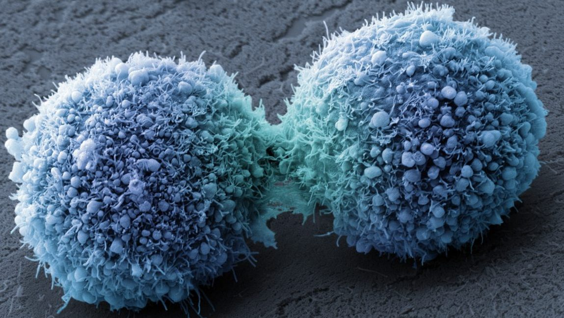 Pancreatic cancer cells completing cell division. (Visuals Unlimited, Inc./Dr. Stanley Flegler)