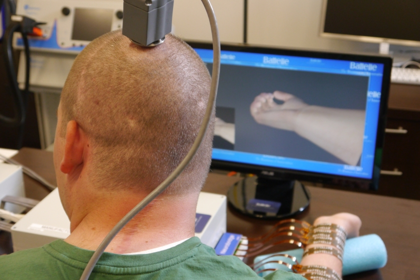 **Embargo until 12:01 AM 6/24/14** COLUMBUS, OH - JUNE 18: Ian Burkhart has a port at the top of his head where a transmitter carries signals from a chip implanted in his brain to a computer, seen here during a training session in Columbus, OH on June 18, 2014. He studies hand movement simulations on the screen that he then tries to replicate with his paralyzed hand. (Photo by Lee Powell / The Washington Post via Getty Images)