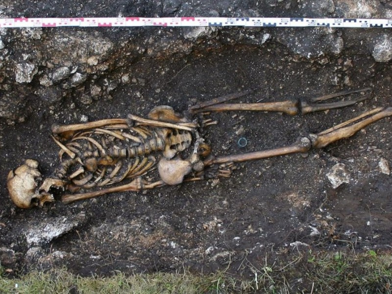 Skeleton missing left foot and ankle with prosthetic implant at Hemmaberg, Austria. (Austrian Archaeology Institute/Josef Eitler/AFP/Getty)