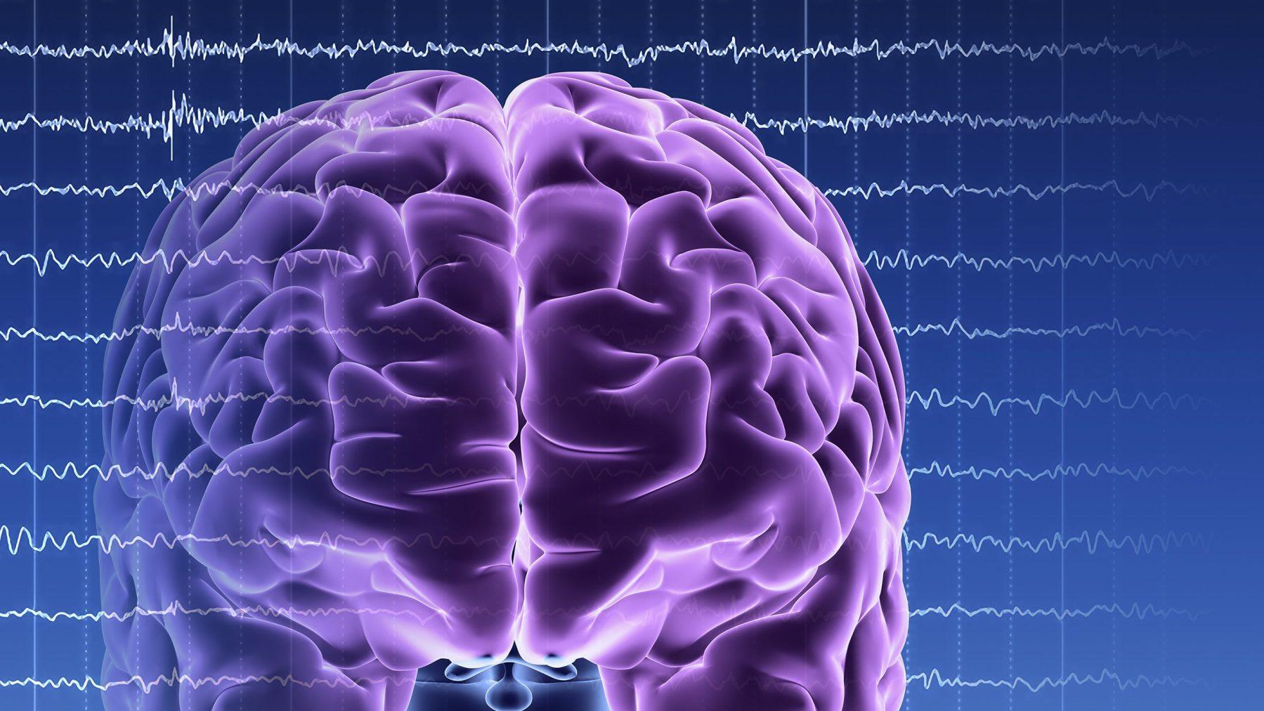 Brain activity. Computer artwork of EEG (electroencephalogram) traces superimposed over a brain illustration. An EEG records the brain's activity.