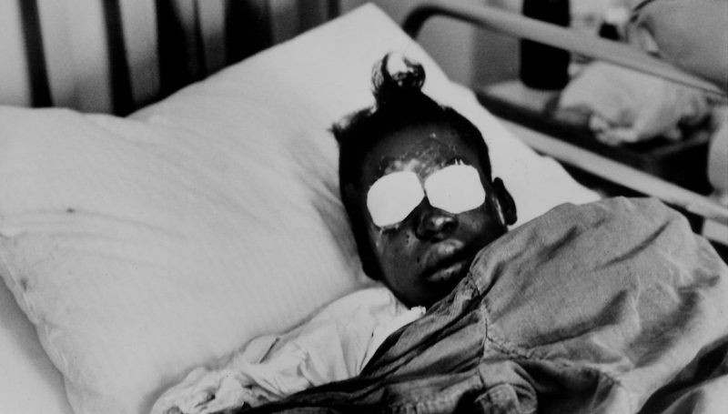 Hospitalized bomb blast victim Sarah Jean Collins, 12, blinded by dynamite explosion set off in basement of the Birmingham, Alabama church that killed her sister and three other girls as her Sunday school class was ending. (Frank Dandridge/The LIFE Images Collection/Getty Images)