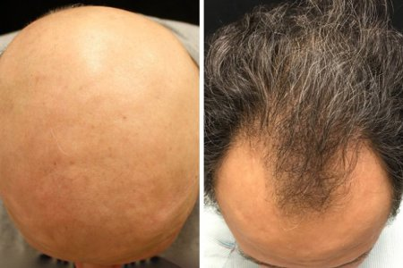 Guys: A New Drug Just Solved Baldness in 50% of Test Subjects