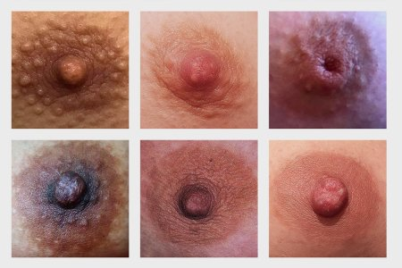 Are These Man Nipples or Lady Nipples?
