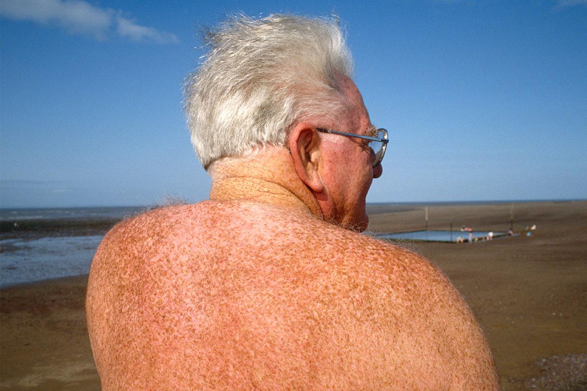 old guy melanoma