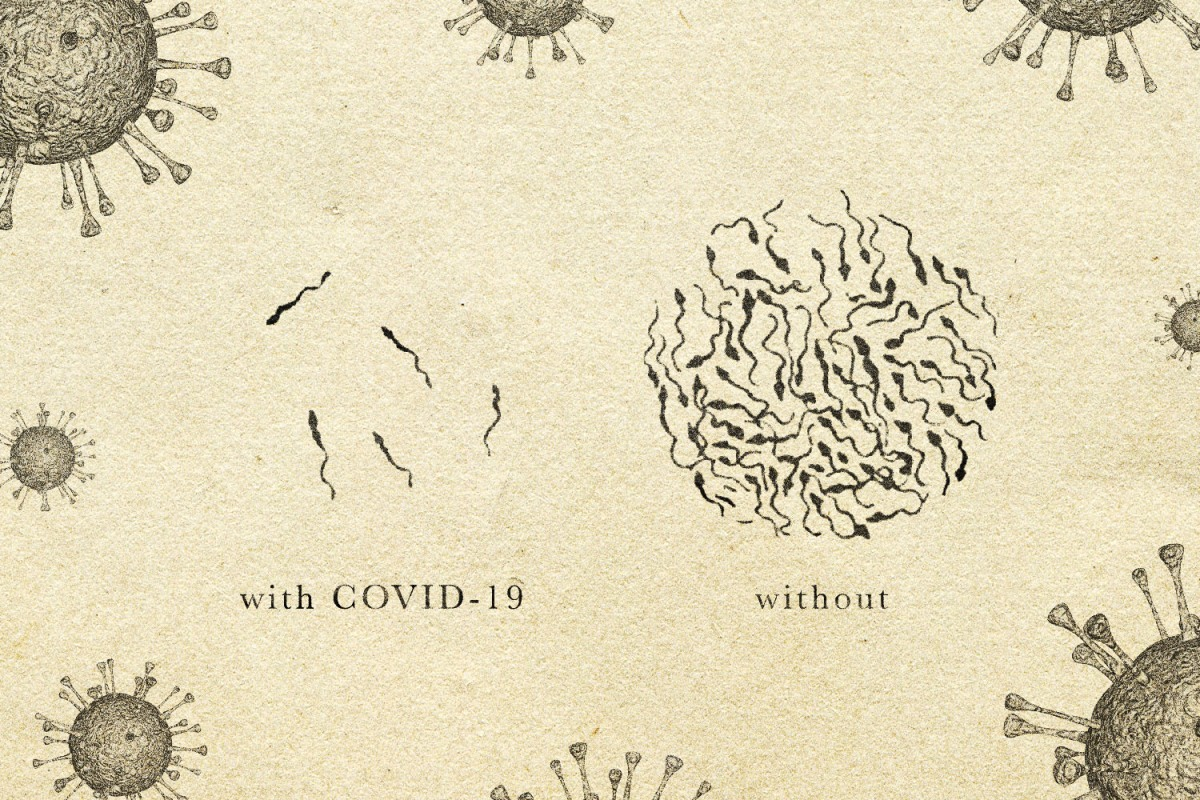 """A diagram of sperm under a microscope. On the left: a small amount of sperm with the label """"with COVID-19. On the right: a lot of sperm with the label """"without."""""""